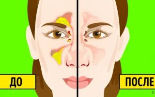 Чем пробить нос при насморке