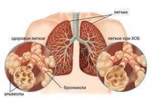 Антибиотики при бронхите и пневмонии у взрослых