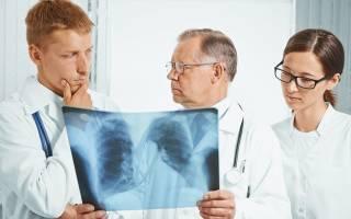 Чем опасно воспаление легких