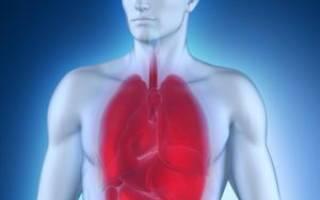 Можно ли заразиться пневмонией