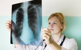 Воспаление легких у детей симптомы без температуры