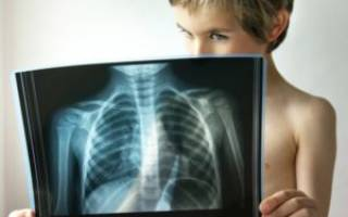 Соэ при пневмонии у ребенка
