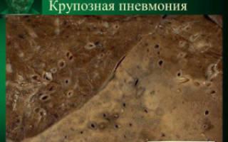 Стадии крупозной пневмонии