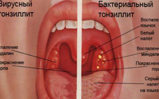 Вирусный тонзиллит симптомы