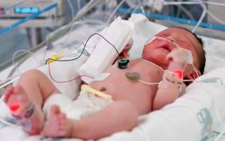 Пневмония у новорожденного ребенка