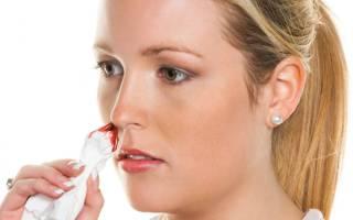 Кровь из носа при гайморите