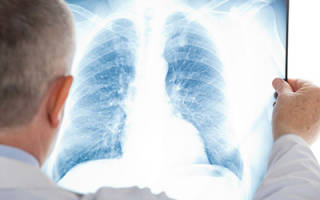 Диета при пневмонии у взрослых