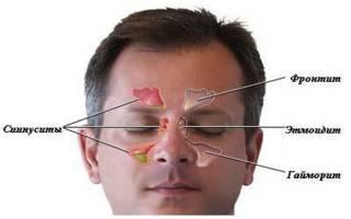 Как прокалывают нос при гайморите