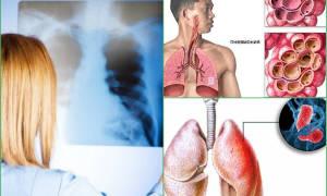 Пневмония. Страница 27