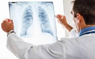 Сколько лечится воспаление легких