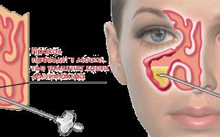 Лечение гайморита проколом