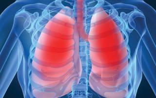 Опасное воспаление при туберкулезе или пневмонии