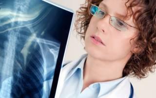 Народные средства от воспаления легких
