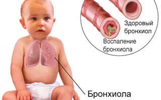 Почему ребенок часто болеет бронхитом