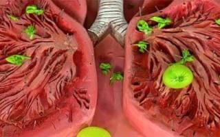Заложена грудная клетка кашель сухой