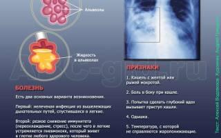 Пневмония фото