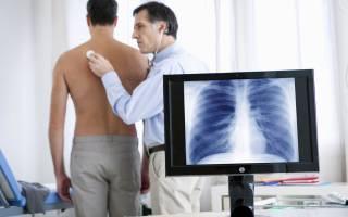 Чем лечить кашель при бронхите