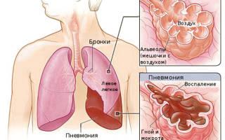 МАССаж при воспалении легких