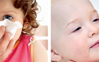 Как остановить начинающийся насморк у ребенка
