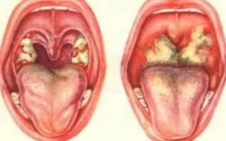 Чем прогреть грудную клетку при кашле