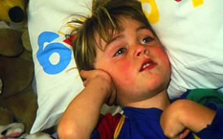 Как снять боль при отите у ребенка