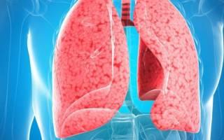 Какие симптомы при пневмонии у взрослых