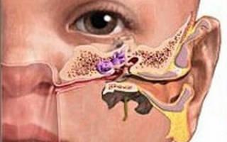 Отит среднего уха лечение у детей