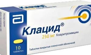 Кларитромицин при гайморите