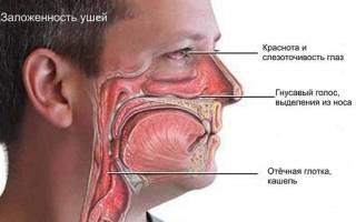 Лекарство от насморка