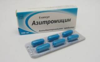 Медикаментозное лечение гайморита у взрослых