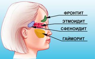 Насморк и головная боль без температуры