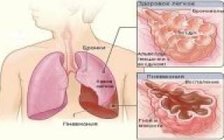 Пневмония. Страница 29