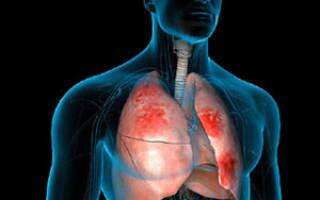 Какая температура при воспалении легких