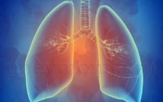 Хроническая пневмония симптомы