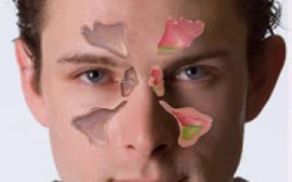 Как распознать гайморит в домашних условиях