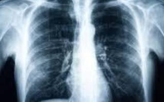 Пневмония рентген снимки