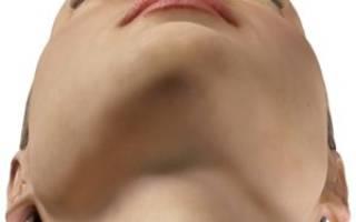 Острый катаральный гайморит