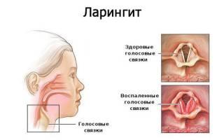 Сухой кашель и температура 37 у ребенка