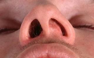 Простуда на носу лечение