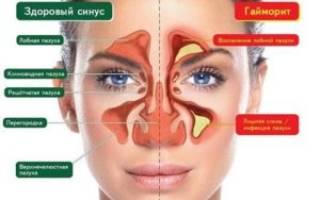 Препараты для лечения синусита и гайморита